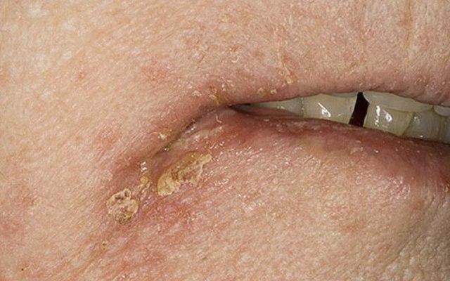 Стафилококковое импетиго: диагностика, симптомы болезни, лечение, прогноз