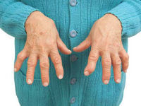 Шишка на большом пальце руки: на фаланге, на сгибе, под кожей, фото