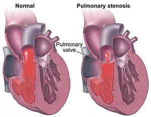 Стеноз легочной артерии у новорожденных и детей: лечение, симптомы, степени