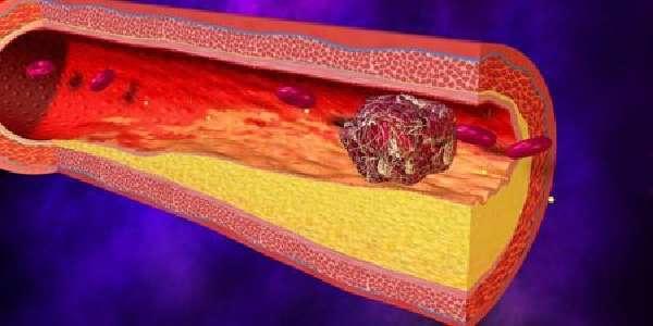 Тромбоз кишечника: причины, симптомы, диагностика, лечение