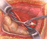 Уретеролитотомия: виды, показания, ход операции, противопоказания
