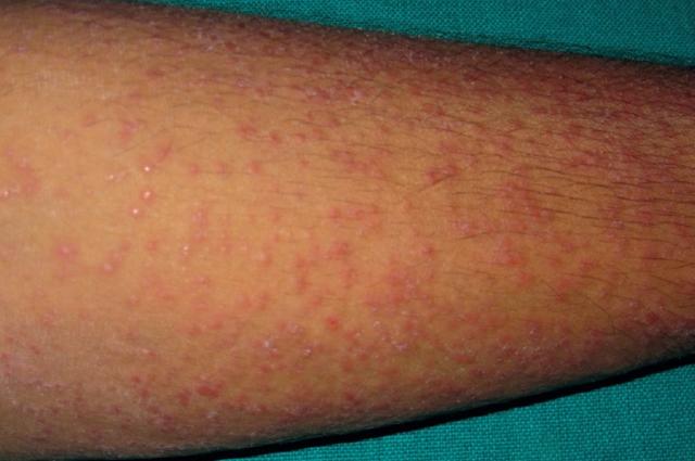 Туберкулез кожи: причины возникновения, симптомы, методы лечения