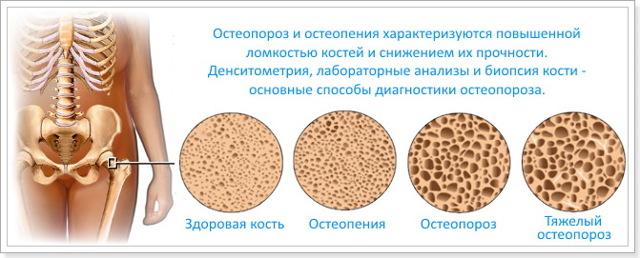 Умеренный диффузный (очаговый) остеопороз плечевого, тазобедренного и коленного суставов: код по МКБ-10, симптомы, признаки, лечение