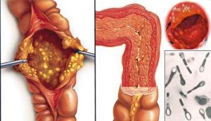 Хронический и острый еюнит: симптомы, причины, диагностика, лечение
