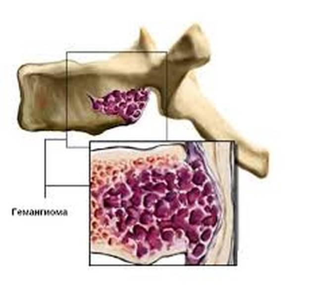 Что такое гемангиома позвоночника, лечение, опасные размеры и фото