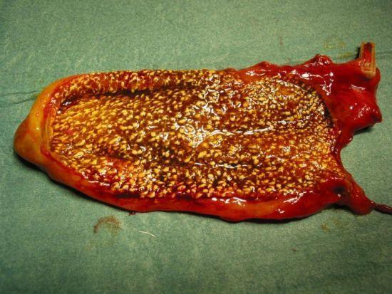 Холестероз стенки желчного пузыря: полиповидная форма, симптомы, лечение народными средствами, диета