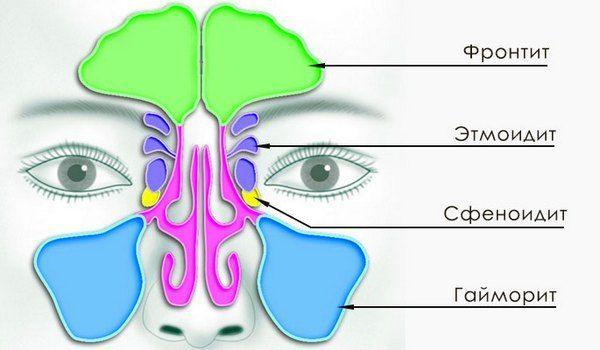 Этмоидит у взрослых и детей: симптомы двухсторонней формы, лечение