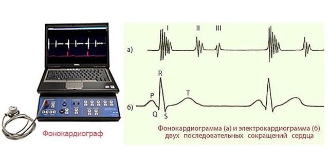 Фонокардиография сердца: метод, подготовка пациента, приборы