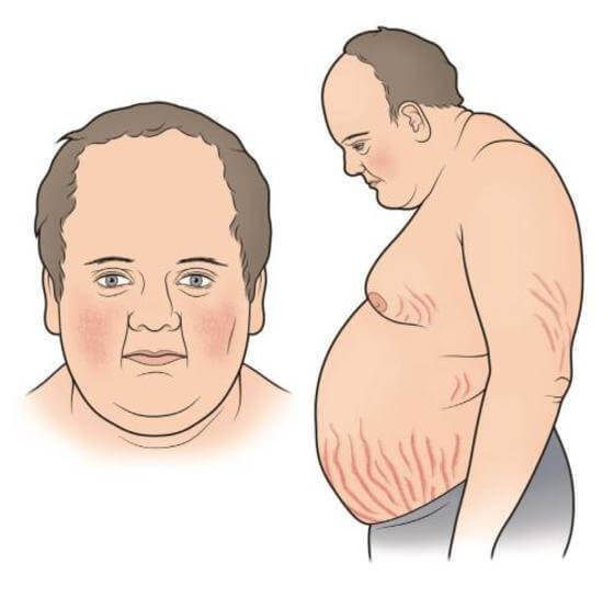 Стрии: лечение, прогноз, симптомы, диагностика, причины
