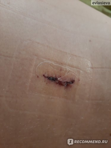Эндоскопическое удаление грыжи позвоночника: цена малоинвазивной операции, кому показана, отзывы, реабилитация