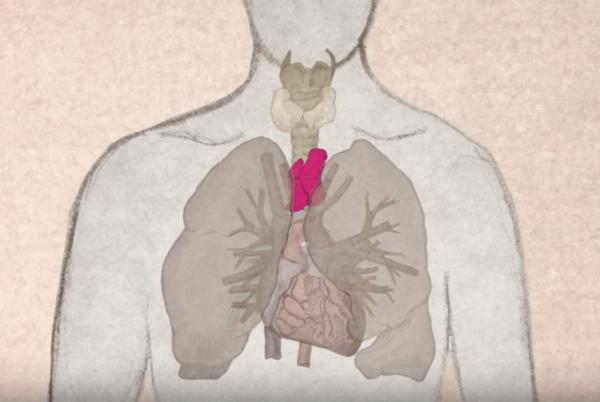 Тимома вилочковой железы: стадии, симптомы, фото, диагностика и лечение опухоли