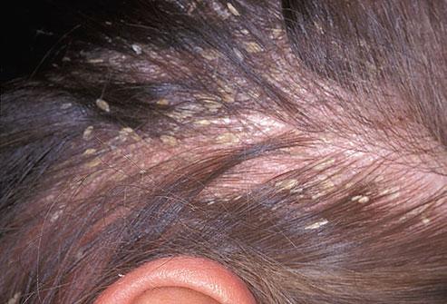 Сухая себорея: диагностика, симптомы, причины появления, методы лечения