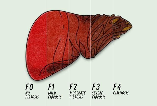 Фиброз печени 1, 2, 3, 4 степени: симптомы, причины, шкала Метавир, лечение, диета, прогноз