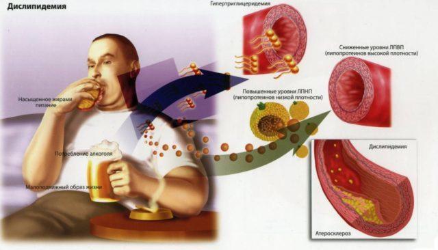 Церебральный атеросклероз сосудов головного мозга: лечение, симптомы, препараты