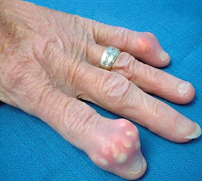 Тофусы при подагре на ногах и пальцах рук: как выглядят, фото, лечение, как удалить народными средствами
