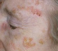 Солнечный (актинический) кератоз: лечение, прогноз, симптомы, диагностика, причины