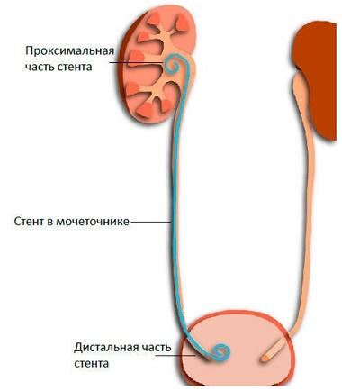 Стриктура мочеточника: код по МКБ-10, причины и симптомы, лечение, прогнозы