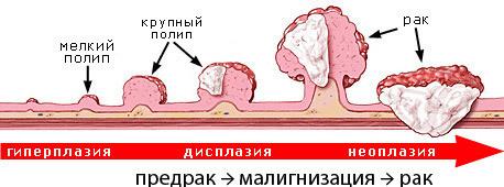 Эндоскопическая полипэктомия полипа матки, желудка, кишечника, пищевода, носа: диета