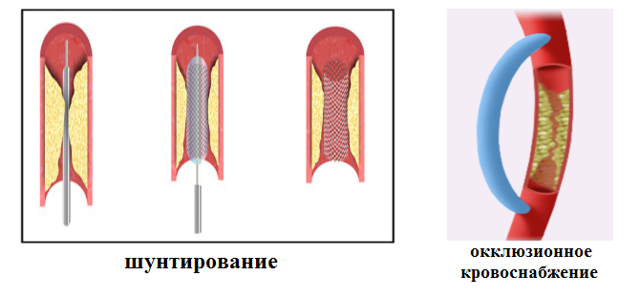Тромбоэмболия легочной артерии: симптомы, лечение, неотложная помощь, причины