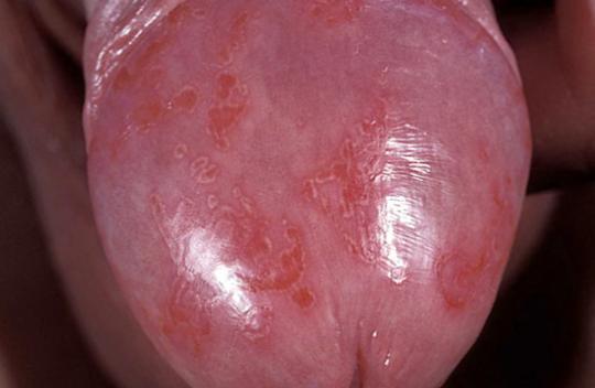 Эритроплазия кейра: фото, симптомы, причины, диагностика, лечение