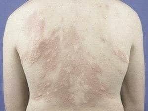 Солнечная крапивница: причины возникновения, симптомы, лечение