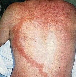 Электрические ожоги: причины, симптомы, лечение и профилактика