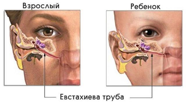 Что делать, если заложило ухо при гайморите: причины, провоцирующие факторы, лечение