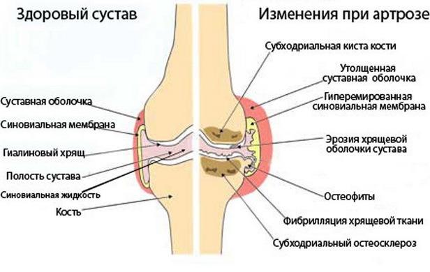 Тейпирование коленного, тазобедренного и плечевого сустава, голеностопа, шеи, поясницы при артрозе