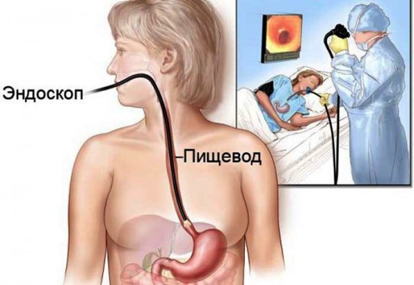 Эрозивный рефлюкс эзофагит-что это такое: симптомы, степени, лечение, диета