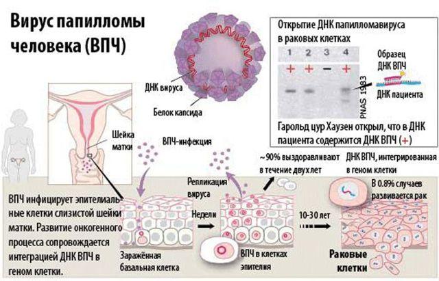Типы вируса папилломы человека: 16, 18, 31, 33, 51, 52 и 56, фото и лечение