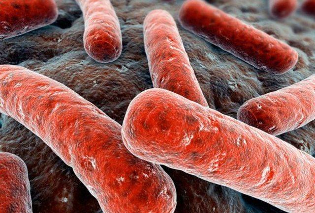 Туберкулез простаты: причины, симптомы, диагностика, лечение