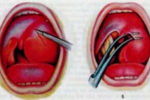 Тонзиллярный абсцесс: фото, история болезни, симптомы, лечение, прогноз