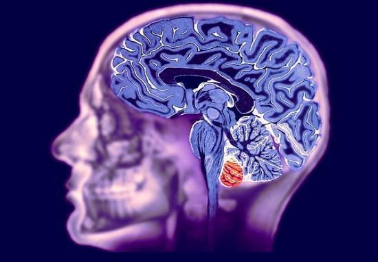 Сосудистый вторичный паркинсонизм: причины, симптомы, этиология, диагностика и лечение