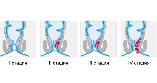 Хронический геморрой: код по МКБ-10, степени, симптомы, лечение