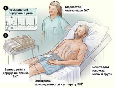 Стенокардия покоя: симптомы, лечение, признаки, первая помощь