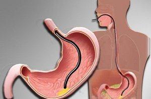 Удалять или нет полип в желудке: цена операций, отзывы, лечение без операции, диета