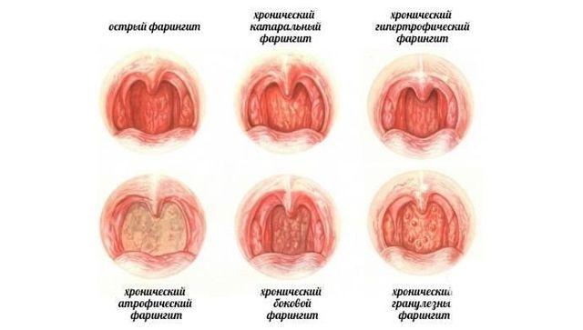 Хронический атрофический фарингит: симптомы и лечение народными средствами, фото