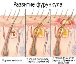 Фурункул (гнойник) на половом члене: причины, как выглядит, что делать, как лечить