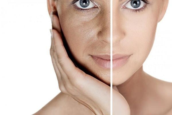 Фотостарение кожи: классификация и локализация, причины, симптомы, методы лечения