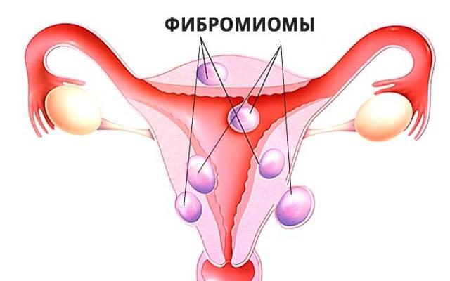 Фибромиома матки: что это такое, симптомы, причины, лечение, фото, осложнения