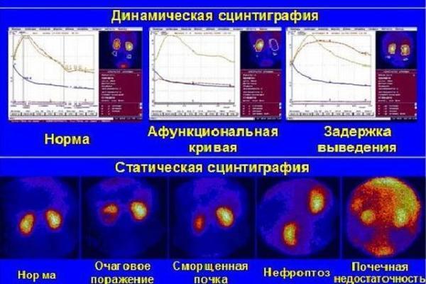 Статическая и динамическая сцинтиграфия почек: показания, процедура, расшифровка результатов