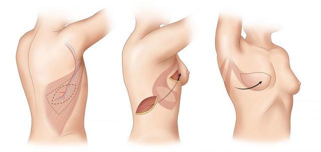 Что такое мастэктомия: реконструкция груди, фото, протезы, операция, видео, виды