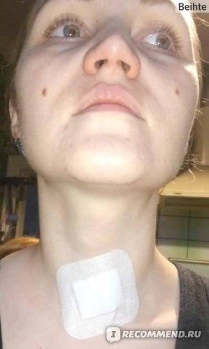 Тонкоигольная пункционная биопсия щитовидной железы: цена, отзывы, расшифровка результатов