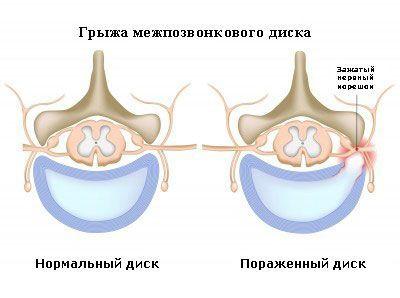 Чем опасны протрузии дисков шейного (c5-c6) и поясничного (l4-l5) отдела позвоночника: последствия, осложнения