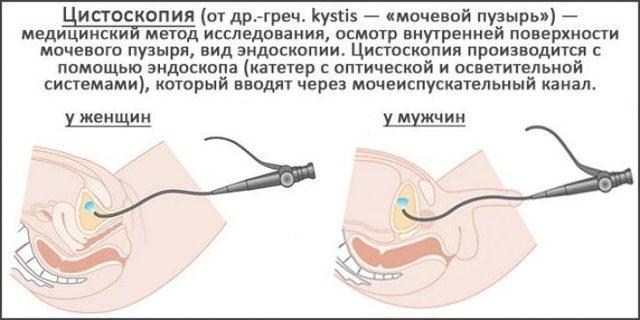 Цитоскопия мочевого пузыря у детей, мужчин и женщин: что показывает, как подготовиться, как делают
