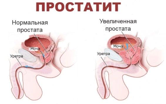 Странгурия у мужчин и женщин: причины, как проявляется, лечение народными средствами и лекарствами