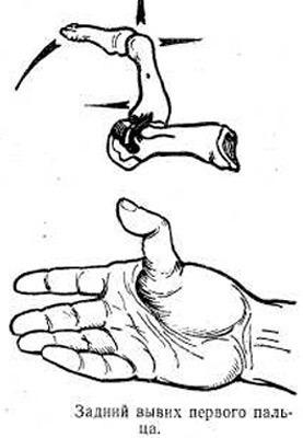 Что делают, если опухают и болят пальцы рук: фаланги, суставы, подушечки, ногти, кожа