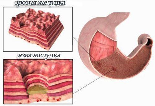 Эрозия желудка: симптомы и лечение, диета, народные средства, медикаменты, фото