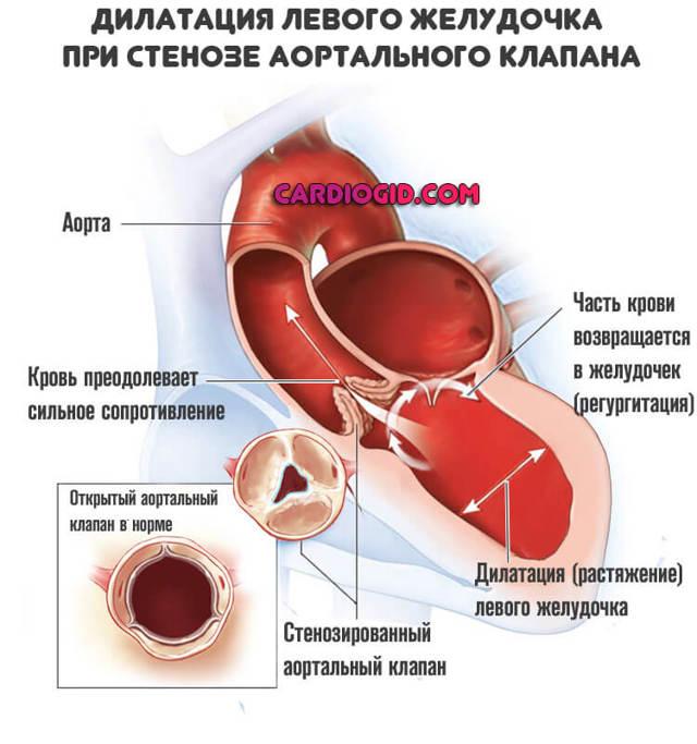 Стеноз аортального клапана: лечение без операции, симптомы, степени