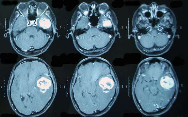 Что такое блефароптоз: понятие, виды, причины появления, диагностика, лечение народными средствами